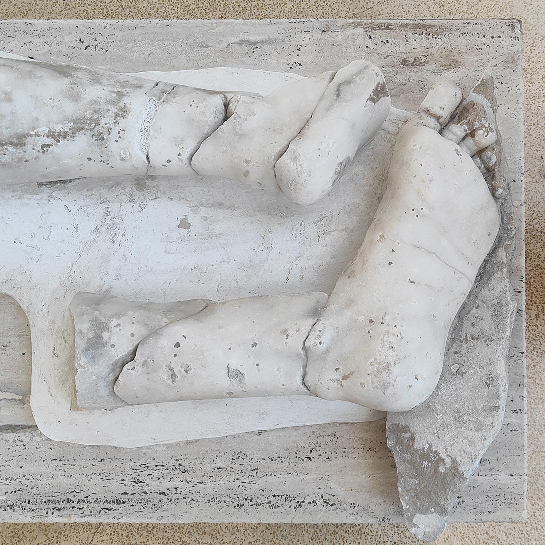 Dettaglio dei piedi e del tendine di Achille